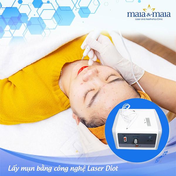 Xử lý nhân mụn công nghệ Laser Diot