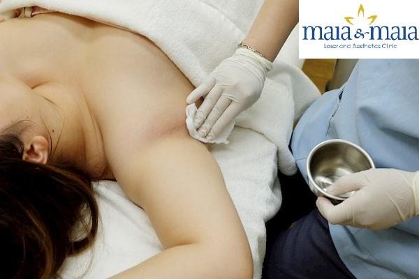 Điều trị Hôi nách tại PK Maia&Maia