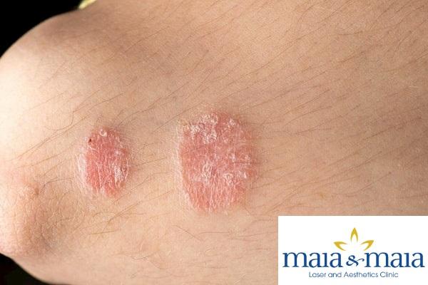 Hình ảnh bệnh nấm da