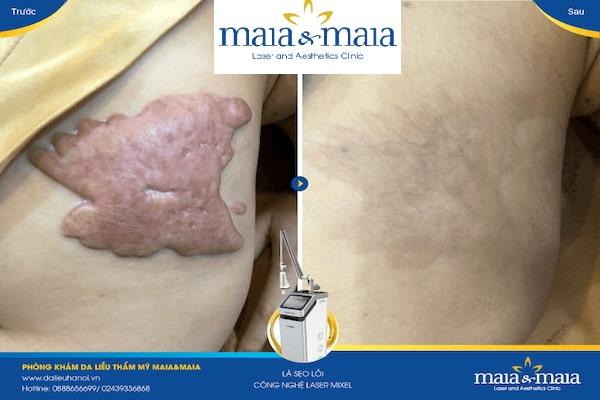 Hình ảnh : trước và sau khi điều trị sẹo lồi tại PK Maia&Maia