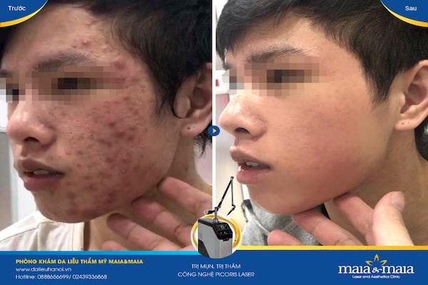 Hình ảnh: Sau khi hỗ trợ điều trị lấy nhân mụn bằng phương pháp Laser DIOT