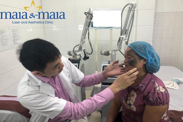 Hình ảnh: Thạc sỹ - Bác sĩ Nguyễn Văn Hoàn đang hỗ trợ điều trị bớt sắc tố cho bệnh nhân