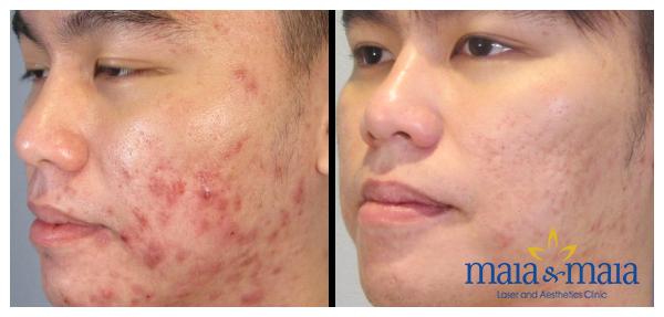 Hình ảnh: Khách hàng trước - sau khi hỗ trợ điều trị sẹo thâm do mụn