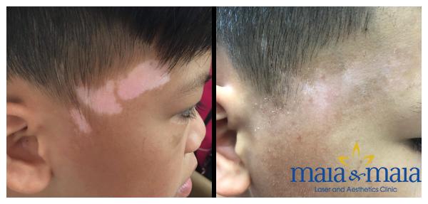 Hình ảnh: Trước và sau khi hỗ trợ điều trị bạch biến