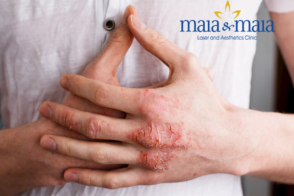 Hình ảnh: Bệnh viêm da tiếp xúc gây ảnh hưởng đến cuộc sống