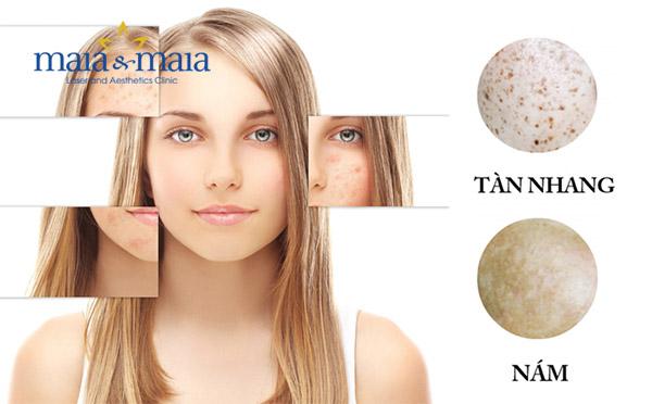 Phân biệt nám da và tàn nhang