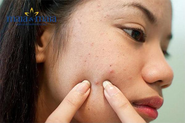 Nặn mụn không đúng cách gây viêm nhiễm nặng