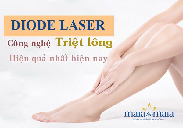 Triệt lông công nghệ Diode Laser an toàn, hiệu quả