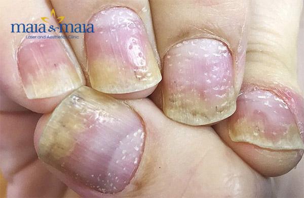 Vảy nến gây tổn thương móng tay
