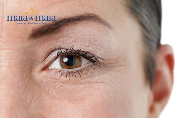 Nếp nhăn vùng mắt hiện rõ hơn mỗi khi bạn cười
