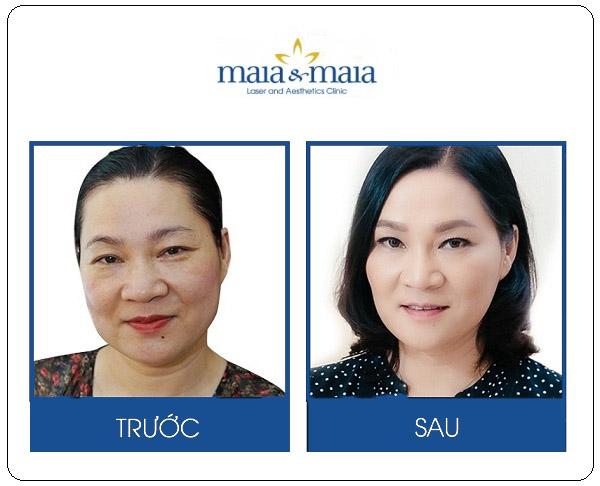 Hình ảnh trước và sau khi xóa nhăn mắt của MC - BTV Kim Ngân
