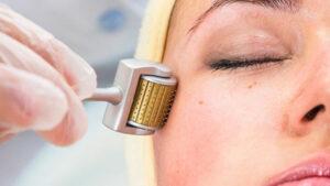Có nên sử dụng phương pháp lăn kim trị nám da?