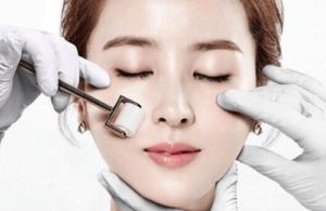 Lăn kim dễ gây tổn thương cho làn da của bạn