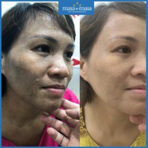 Điều trị nám da có gây tổn thương da không?
