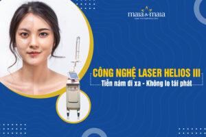 Công nghệ Laser Helios III