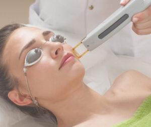 Có thể laser để trị nám da trong thời kỳ mang thai những cần cẩn trọng