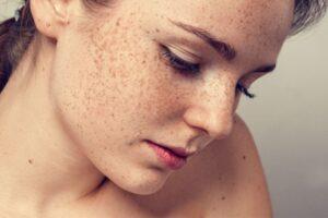 Nám da còn được gọi là mặt nạ của thai kỳ