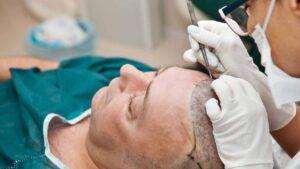 Cấy tóc là phương pháp cuối cùng khi thuốc điều trị không phát huy tác dụng nữa