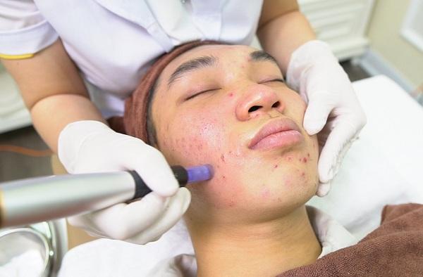 Lăn kim, phi kim giúp kích thích da sản sinh collagen nhằm lấp đầy sẹo rỗ