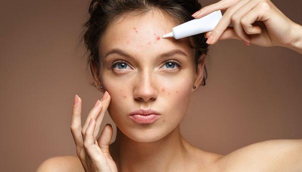 Hãy chăm sóc da mụn đúng cách để ngăn ngừa sự hình thành sẹo rỗ