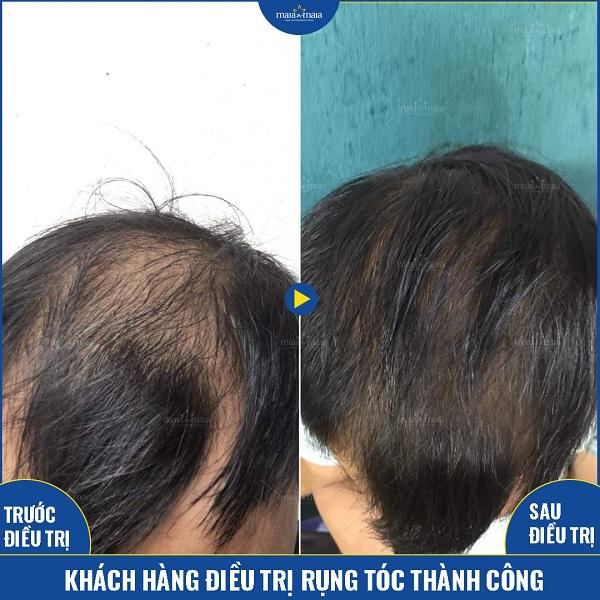 Hiệu quả của khách hàng điều trị rụng tóc tại phòng khám