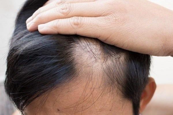 Gội đầu nhiều có thể khiến da đầu bị yếu, dẫn đến rụng tóc