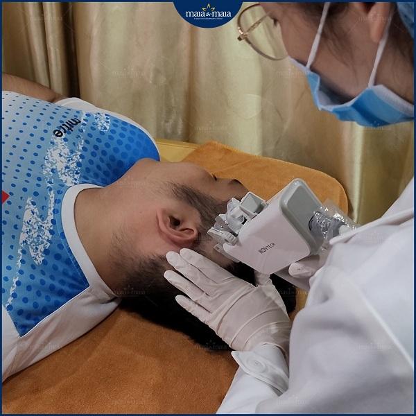 Công nghệ Meso là phương pháp hiệu quả trong phác đồ điều trị rụng tóc