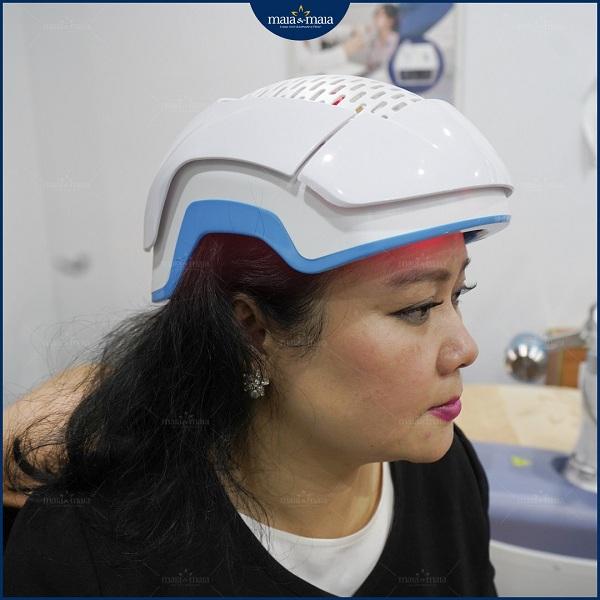 Chiếu đèn Led trong công nghệ Meso để phục hồi và kích thích mọc tóc