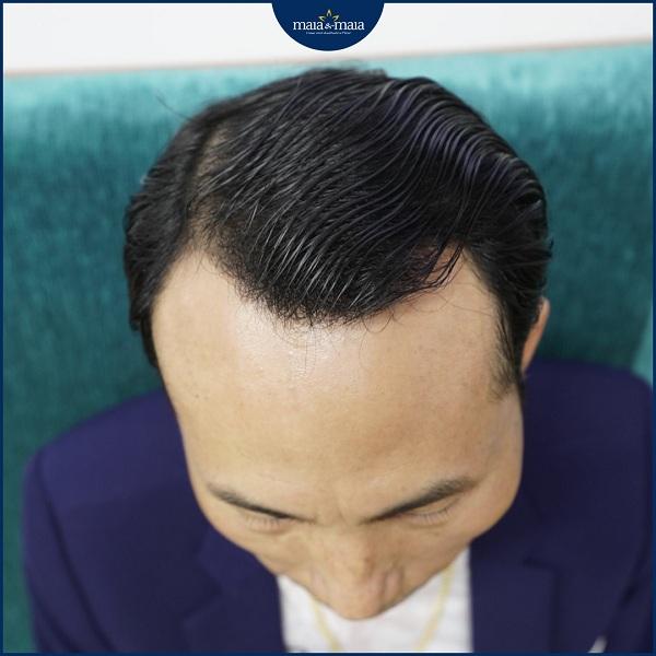 Rụng tóc gây hói đầu ở nam giới