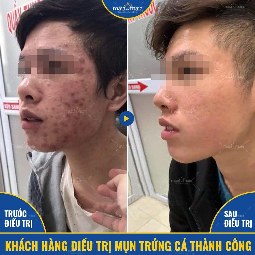 Khách hàng Nguyễn Minh Tiến
