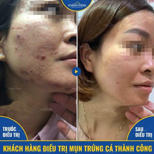 Khách hàng Nguyễn Thị Thu khỏi mụn sau 5 buổi