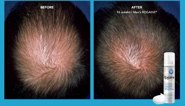 Rogaine kích thích tóc mọc lên dày dặn