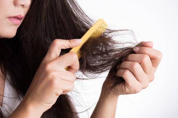 Điều trị rụng tóc bằng Rogaine có thể khiến tóc rụng nhiều hơn trong những tuần đầu