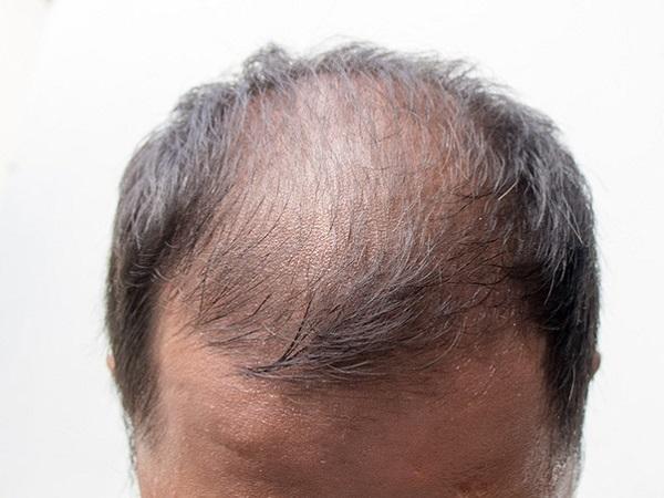 Hói đầu ở nam giới do DHT