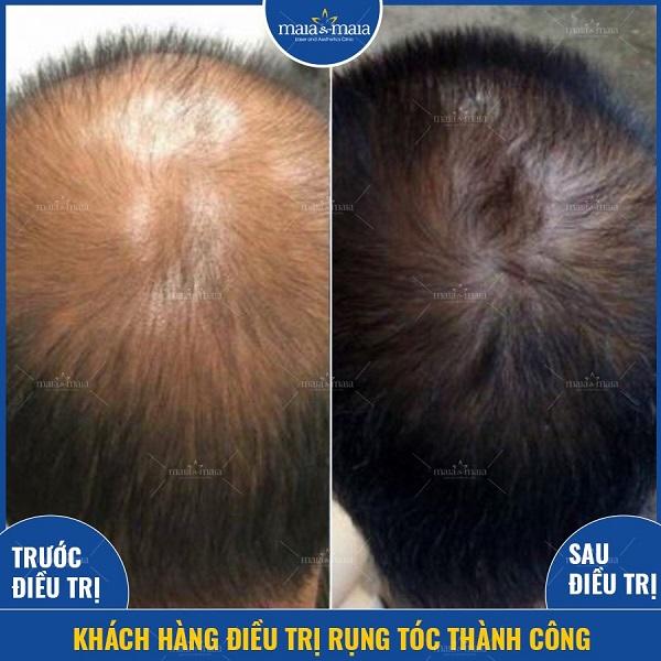 Điều trị rụng tóc bằng phương pháp cung cấp dưỡng chất tại phòng khám Maia