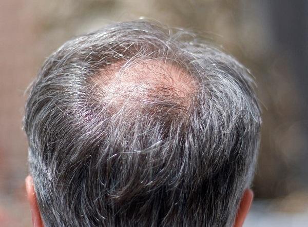 Rụng tóc ở phần đỉnh đầu của nam giới do ảnh hưởng của DHT