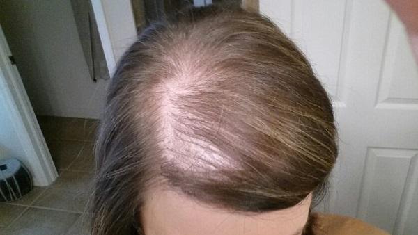 Tình trạng thưa hói do rụng tóc