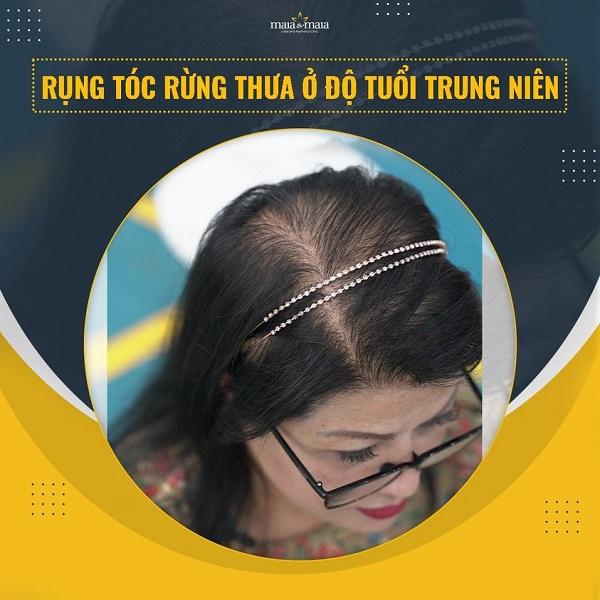 Rụng tóc do nội tiết ở nữ giới