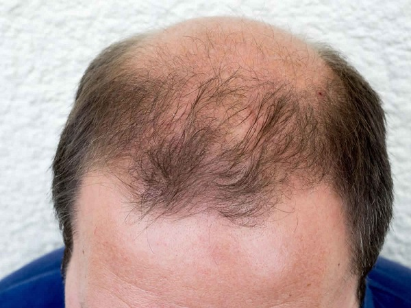 Kiểu rụng tóc hói đầu phổ biến do androgen